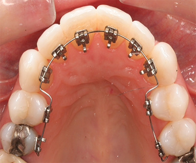 Ceramic Braces Treatment at Perfectsmile clinic in delhi