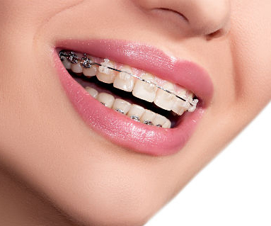 Find best Dental Clinc in South Delhi for Teeth Braces Treatment